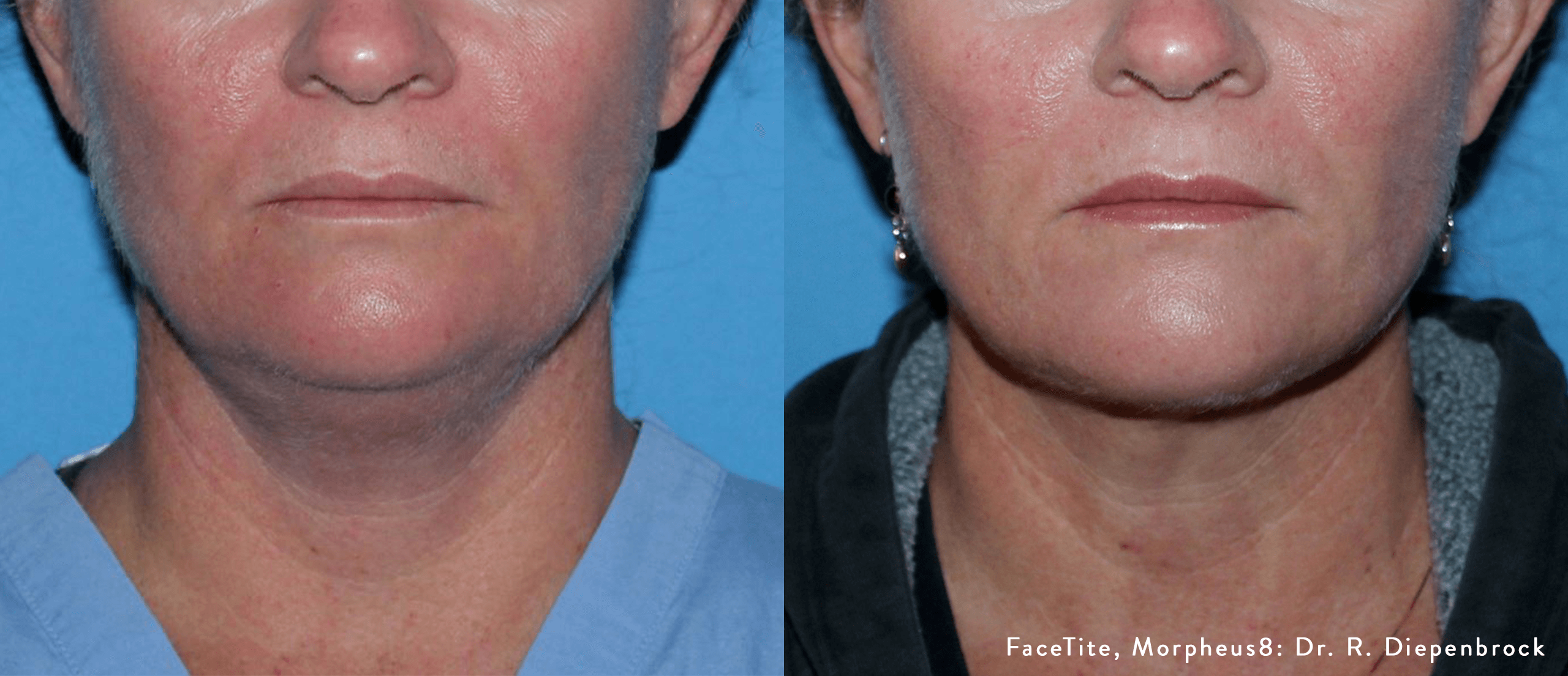 EmbraceRF results before and after
