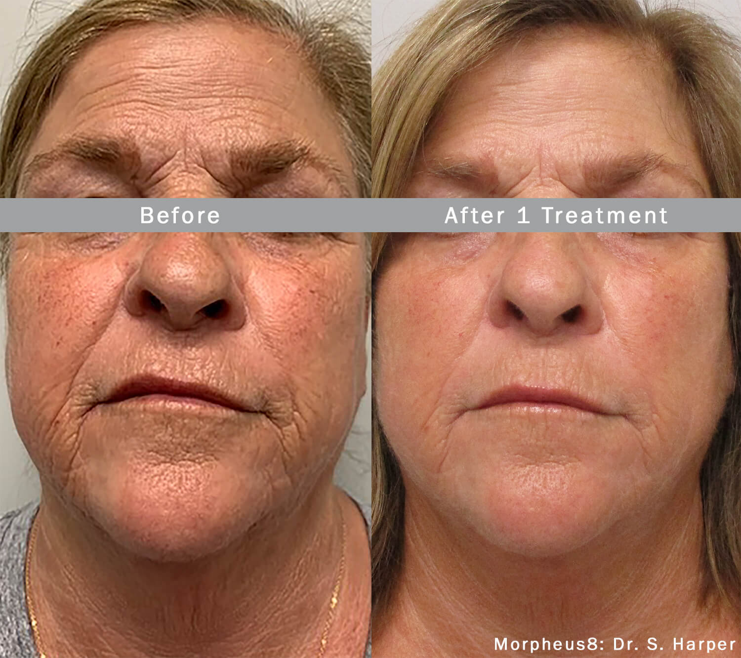 Morpheus8 Before and after results